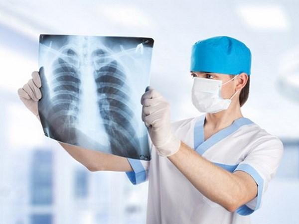 Để điều trị thành công ung thư phổi giai đoạn đầu