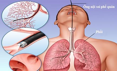 Những triệu chứng của bệnh ung thư phế quản
