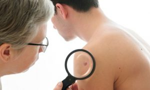 2 phương pháp chữa và điều trị ung thư hắc tố