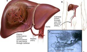 Bệnh Ung thư gan có chữa được không?