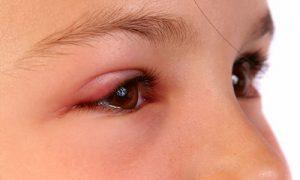 Những biểu hiện bệnh Ung thư mắt