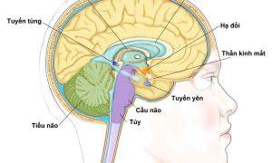 Chữa và điều trị ung thư não như thế nào?
