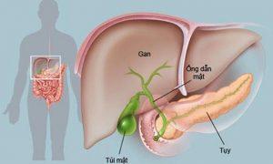 Những triệu chứng ung thư tuyến tụy hay gặp nhất