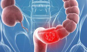 Di truyền học và dịch tễ học bệnh ung thư đại trực tràng