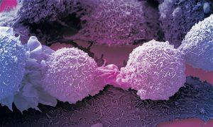 Bệnh ung thư phế quản – Thông tin & Cách điều trị hiệu quả